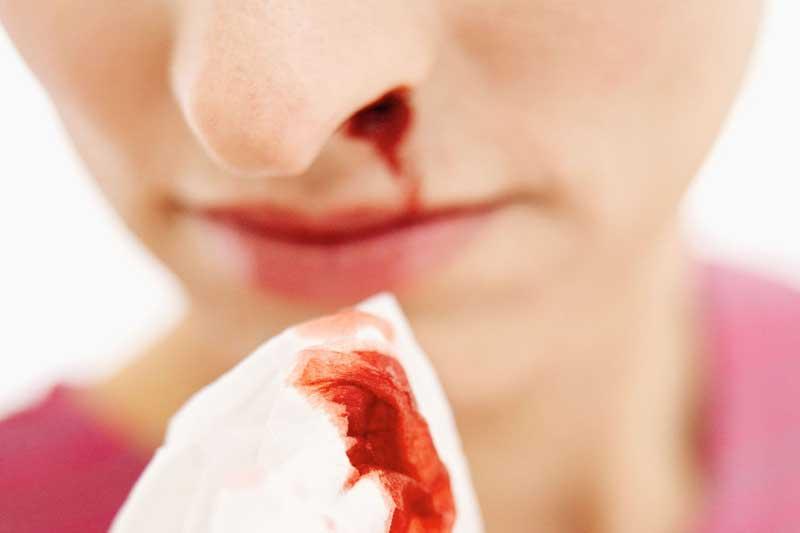 درمان خانگی خون دماغ
