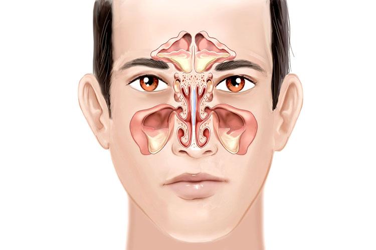 درمان خانگی بیماری سینوزیت